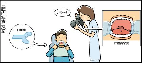 口腔内写真撮影