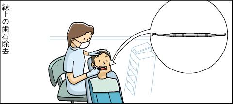 縁上の歯石除去