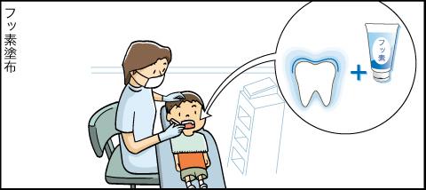 標準的な歯科医療のご案内アニメ フッ素塗布